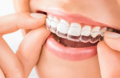 Things to know before applying Invisalign