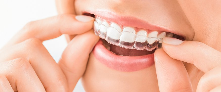 Things to know before applying Invisalign – Urbavore Kitchen